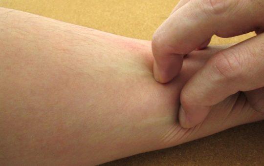 蜂に刺された「カユミ痛み症状を長引かせないため」の処置法