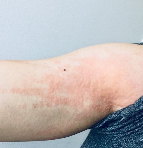 ヒョウヒダニによるアレルギー症状