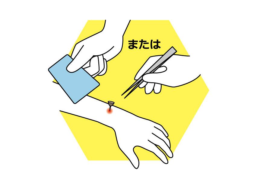 ステップ2 皮膚から針を引き抜く